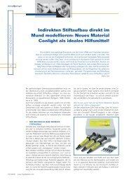 Indirekten Stiftaufbau direkt im Mund modellieren ... - DeltaMed GmbH