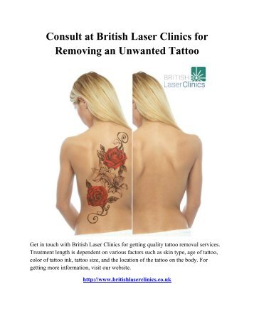 Consult at British Laser Clinics for Removing an Unwanted Tattoo