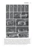 intracellular Pseudaphelidium - Page 5