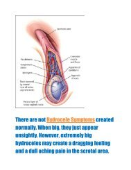 Symptoms and Treatment of Hydrocele Situation