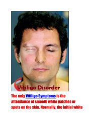 Symptoms and Natural Treatment Method of vitiligo