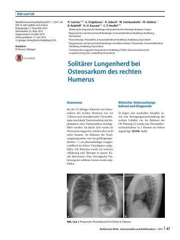 08 Solitärer Lungenherd bei Osteosarkom des rechten Humerus