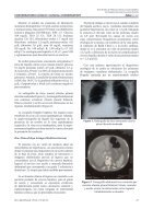cirrosis hepatica - Page 2