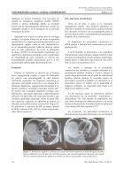 cirrosis hepatica - Page 3