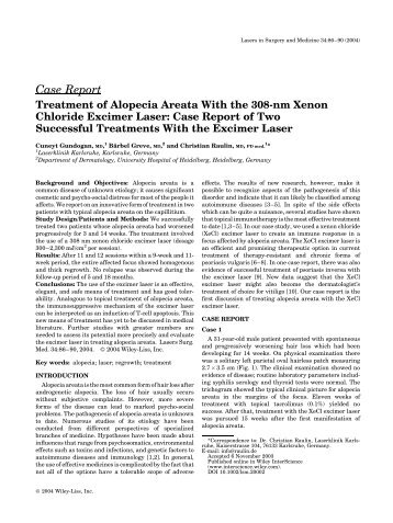 Treatment Of Alopecia Areata With The 308-nm