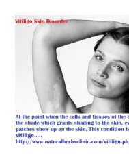 Treatments of Vitiligo