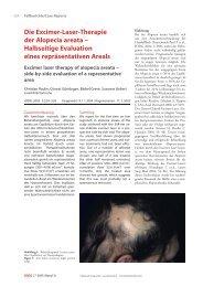 Die Excimer-Laser-Therapie der Alopecia areata ± Halbseitige ...