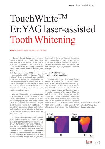 TouchWhite Er:YAG laser-assisted Tooth Whitening - Scanex