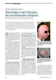 Update Lichen planopilaris - Dermatologische Praxis und ...