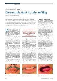 Die sensible Haut ist sehr anfällig - Dermatologische Praxis und ...