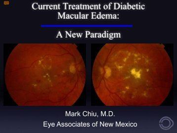 Current Treatment of Diabetic Macular Edema - Eye Associates of ...