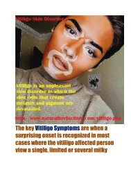 Signs & Symptoms of Vitiligo