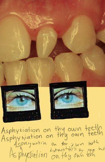 Asphyxiation on Thy Own Teeth