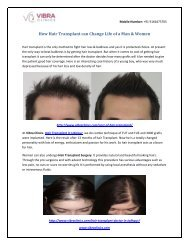 How Hair Transplant can Change Life of a Man