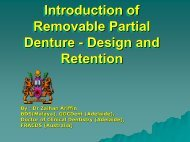 Introduction of Removable Partial Denture - Design