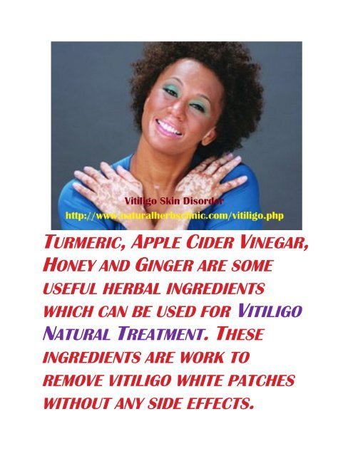 Treatment of Vitiligo with Natural Herbs Clinic,s Herbal Remedy