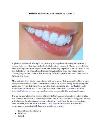 Invisible Braces and Advantages of Using It