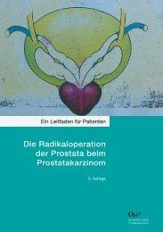 Die Radikaloperation der Prostata beim ... - Prostata.de