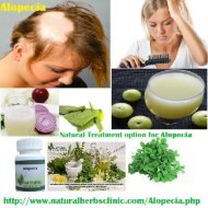 Alopecia Natural Treatment