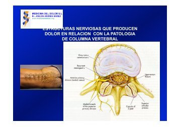 MEDOL-Descompresion discal - Medicina del Dolor