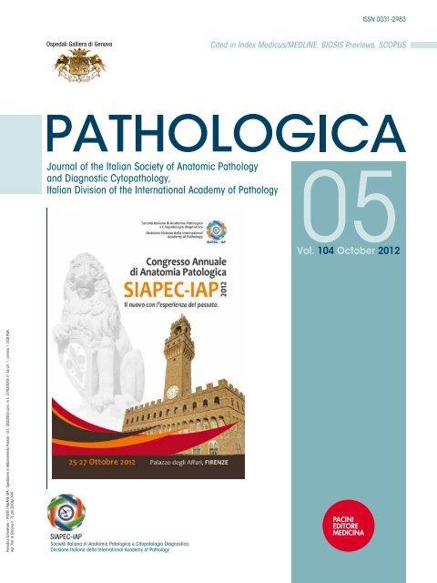 carcinoma prostatico e linfonodi sul colloidal