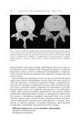 Surgical management of cervical and lumbosacral radiculopathies ... - Page 4
