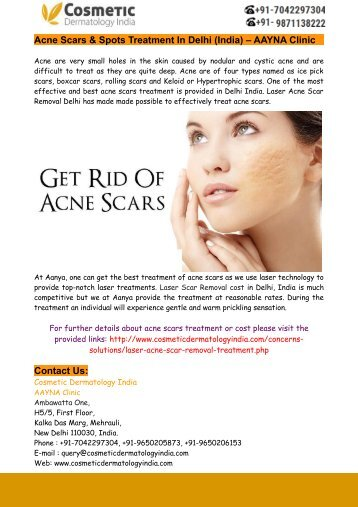 Acne Scars & Spots Treatment In Delhi (India) – AAYNA Clinic