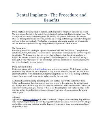 Dental Implants - The Procedure and Benefits