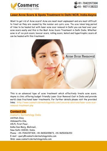 Laser Acne Scars & Spots Treatment In Delhi NCR, India-Aayna