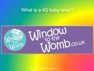 What is a 4D baby scan ?