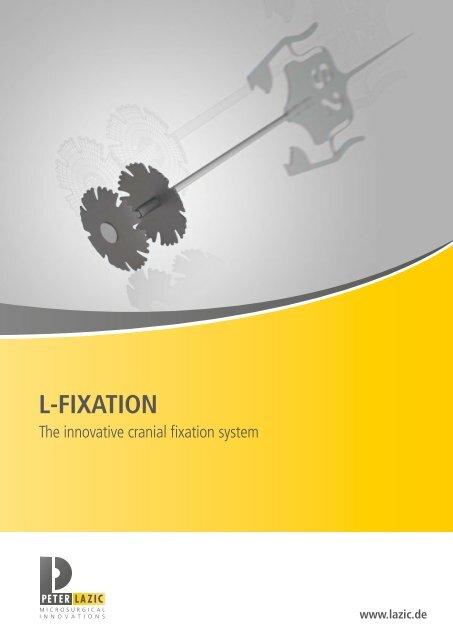 L-Fixation