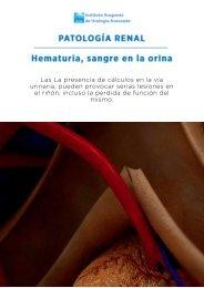hematuria-sangre-en-la-orina