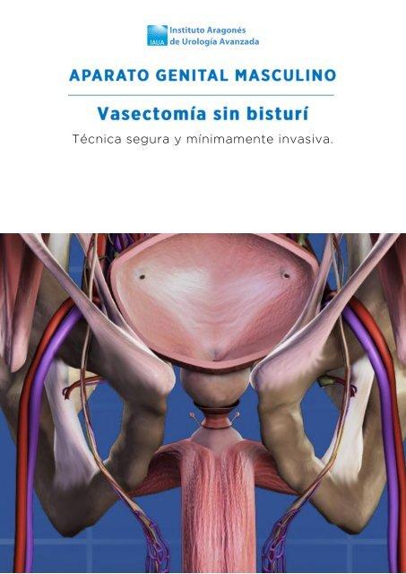 vasectomia-sin-bisturi