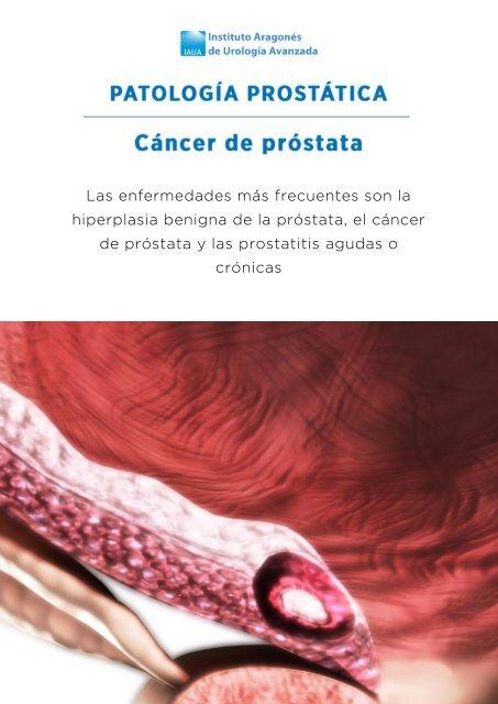 El origen étnico afecta a los hombres que tienen cáncer de próstata.