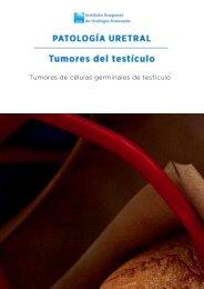 tumores-testiculo