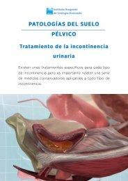 tratamiento-incontinencia-urinaria