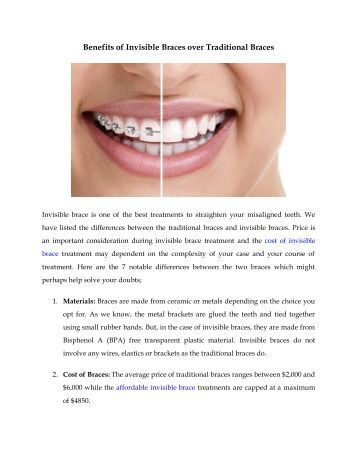 Benefits of Invisible Braces over Traditional Braces