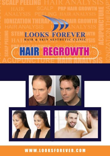 Various Hair Regrowth Treatments