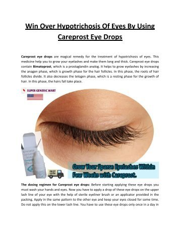 Best place to buy careprost online