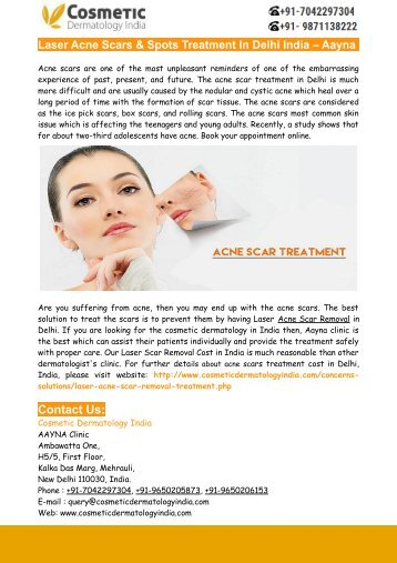 Laser Acne Scars & Spots Treatment In Delhi India – Aayna