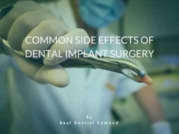 Common Side Effects of Dental Implant Surgery