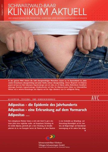 Adipositas - Schwarzwald-Baar Klinikum Villingen-Schwenningen