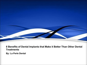 8 Benefits of Dental Implants that Make it Better Than Other Dental Treatments