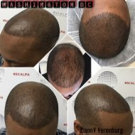 Picture of Hair Loss Tattoo