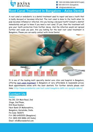 Root Canal Treatment In Bangalore – Axiss Dental