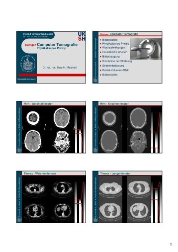 1 Röntgen Computer Tomografie
