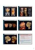 1 Röntgen Computer Tomografie - Seite 7