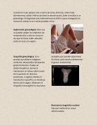 ENDOMETRIOSIS bien  - Page 4