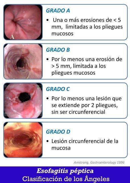 Esofagitis peptica grado ii