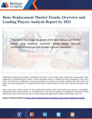 Bone Replacement Market Trends, Overview and Leading Players Analysis Report by 2021